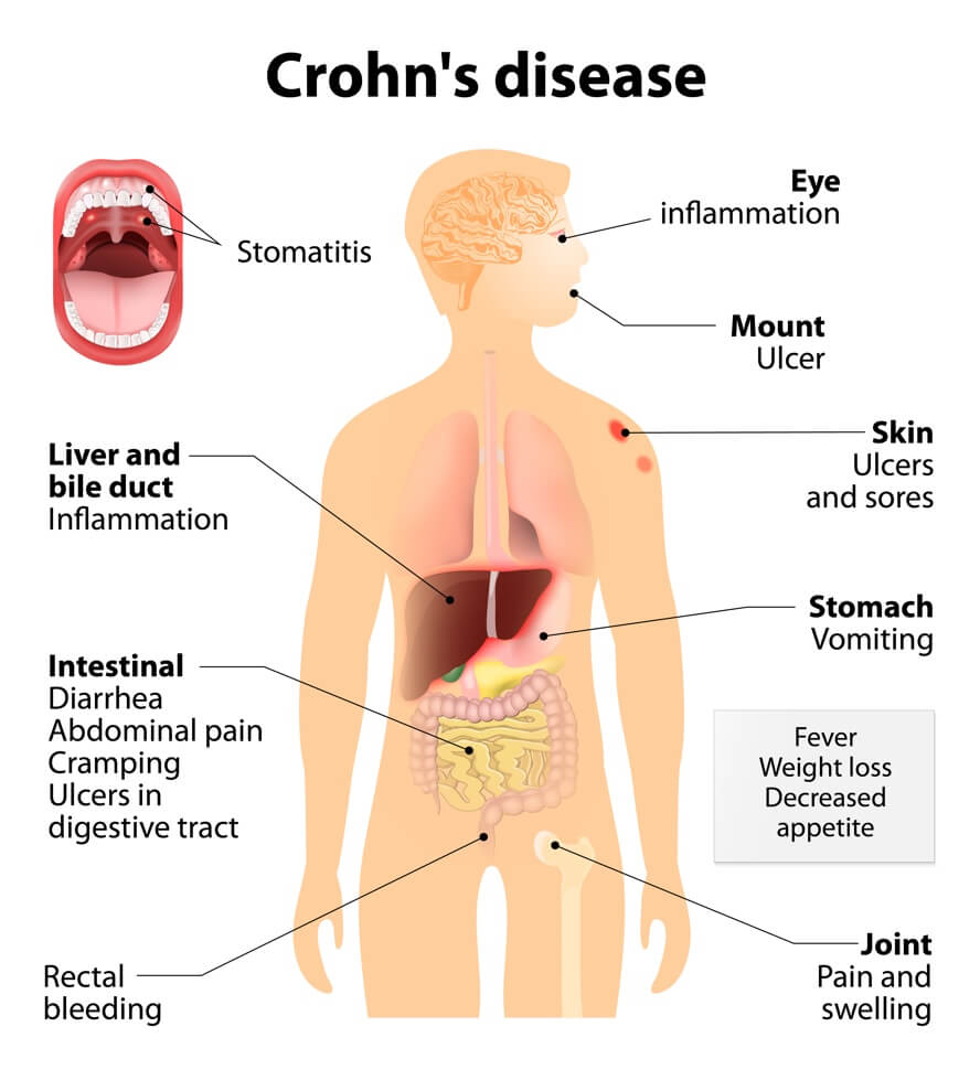 Crohn's Disease: Autoimmune Disease: Signs & Symptoms Your Body Is Attacking Itself + Treatments | Dr. Jiwani's Naturopathic Nuggets Blog