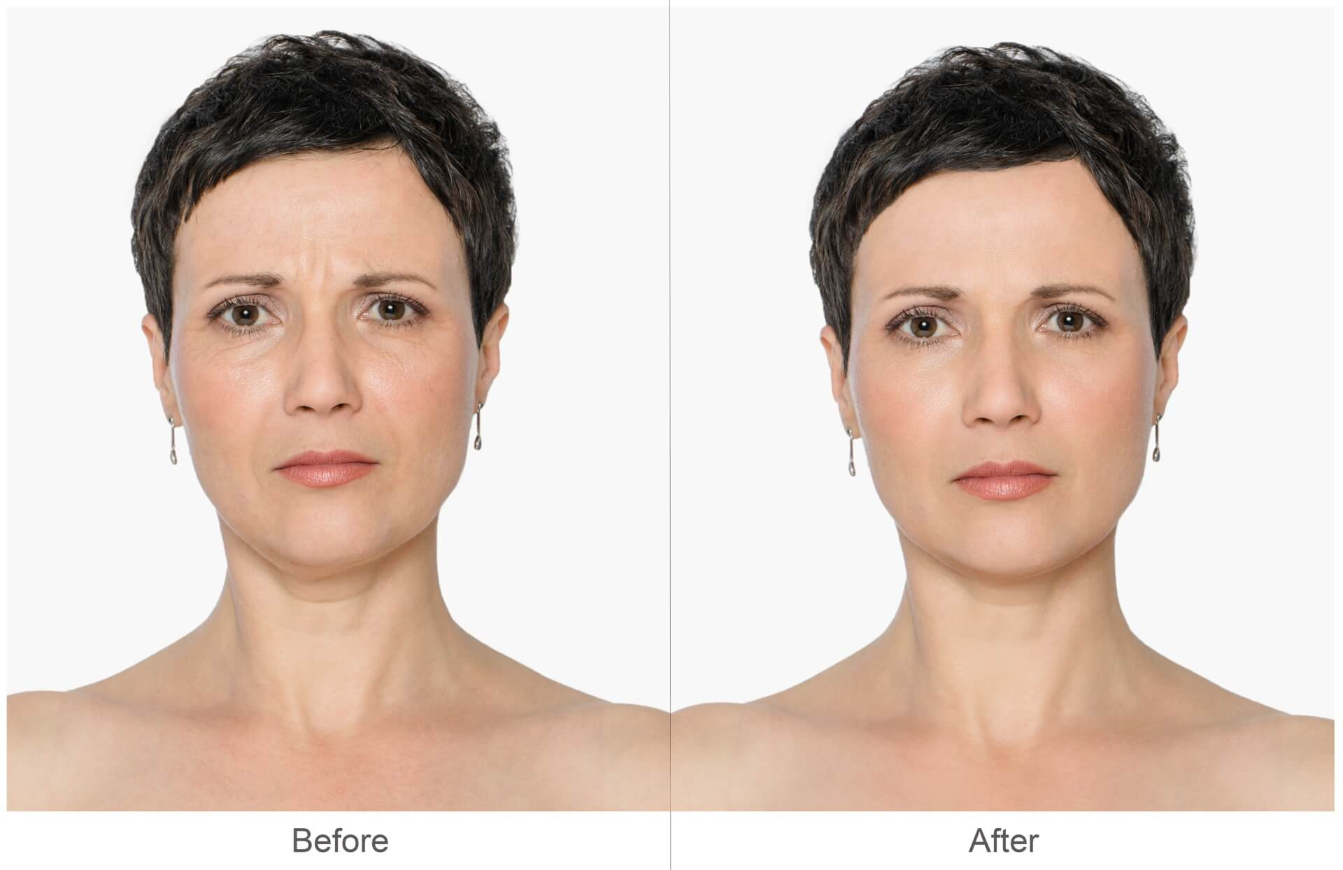 GetNaturopathic Botox Cosmetic Before & After Pictures Dr. Jiwani