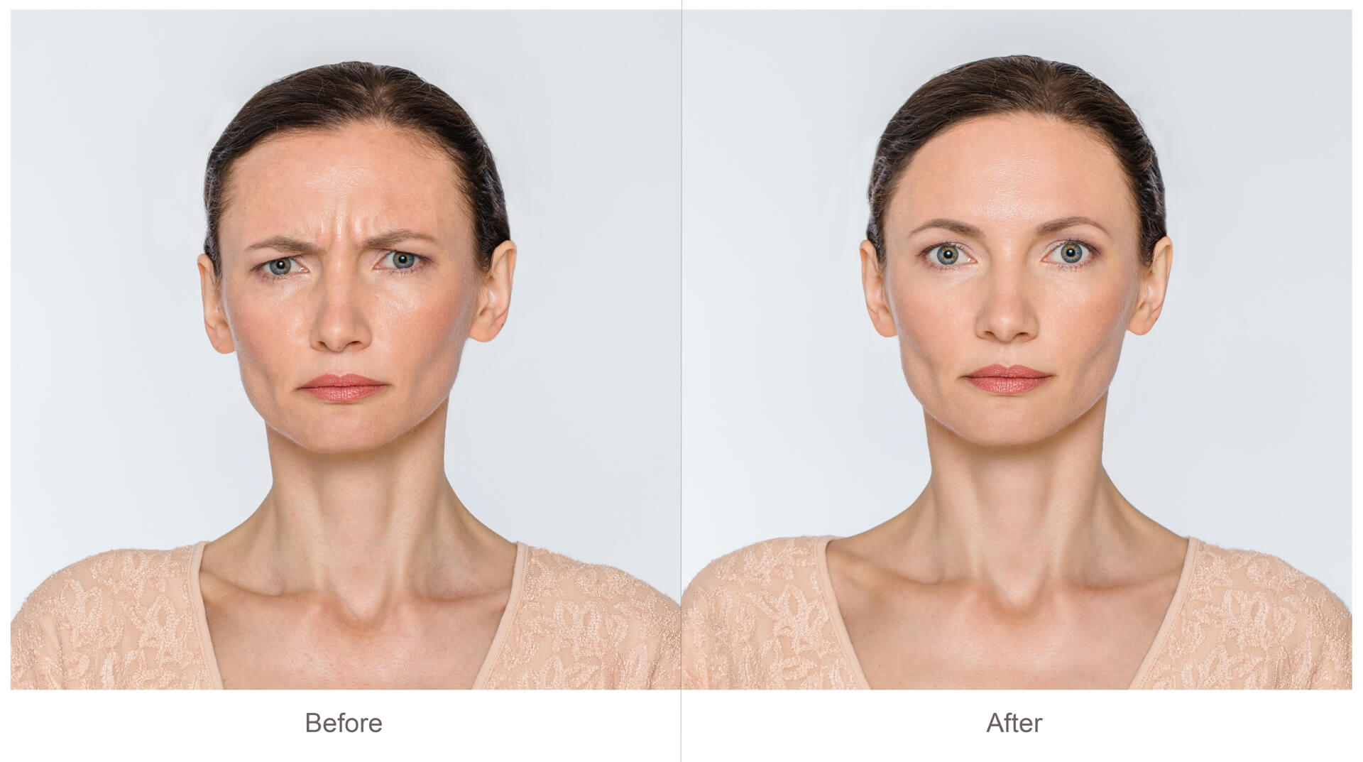 GetNaturopathic Botox Cosmetic Before & After* Pictures Dr. Jiwani
