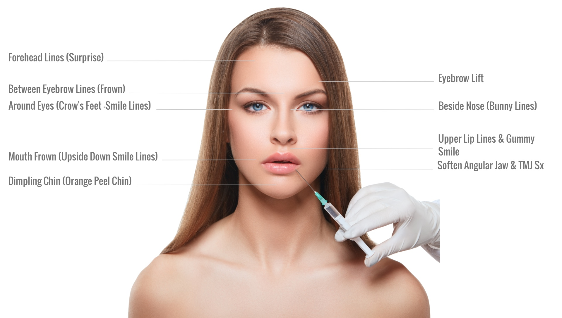 GetNaturopathic Botox & Xeomin Cosmetic Treatment Areas Dr. Jiwani