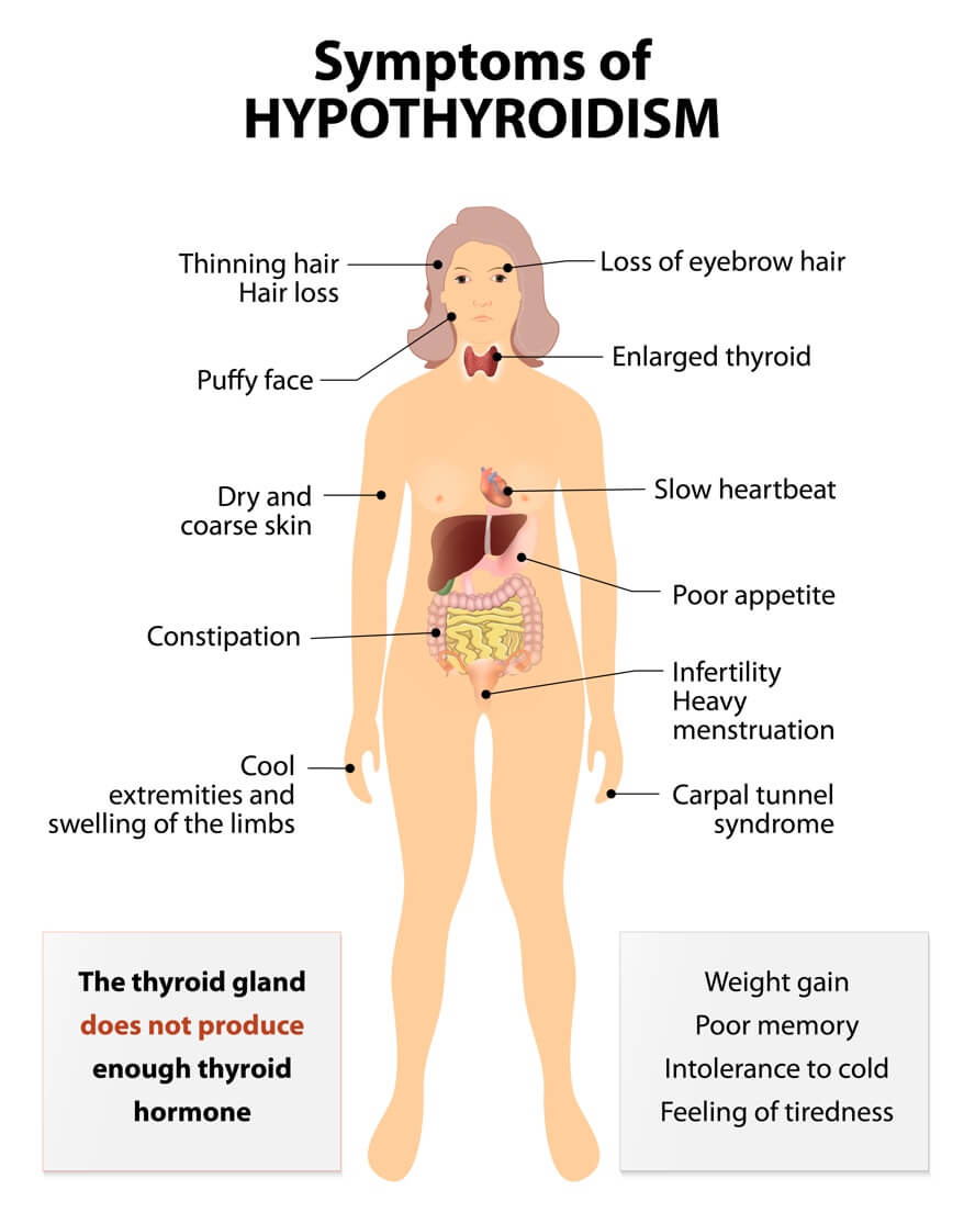Hashimoto's Hypothyroidism: Autoimmune Disease: Signs & Symptoms Your Body Is Attacking Itself + Treatments | Dr. Jiwani's Naturopathic Nuggets Blog