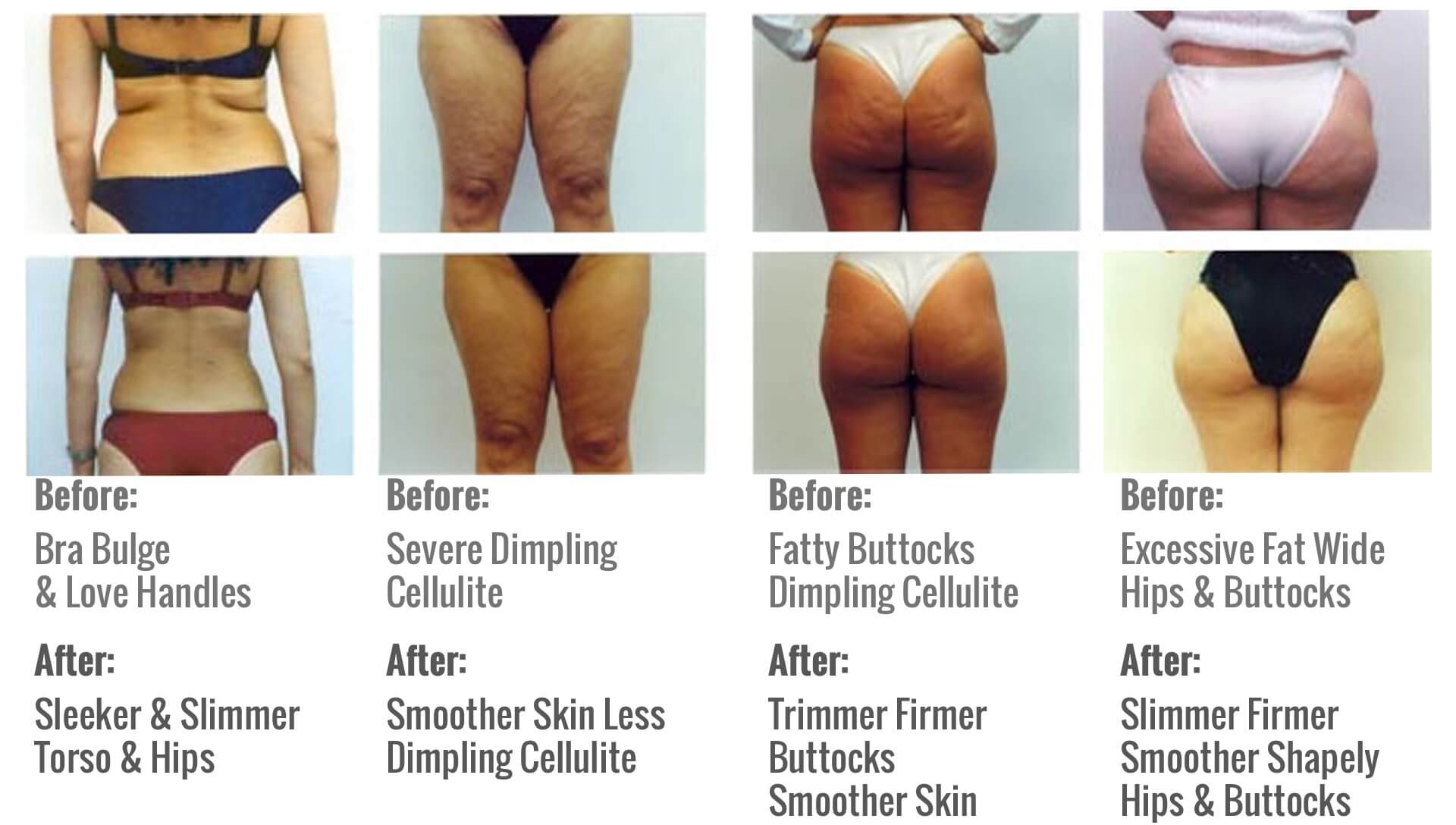 GetNaturopathic Mesotherapy Lipodissolve Before & After Pictures Dr. Jiwani