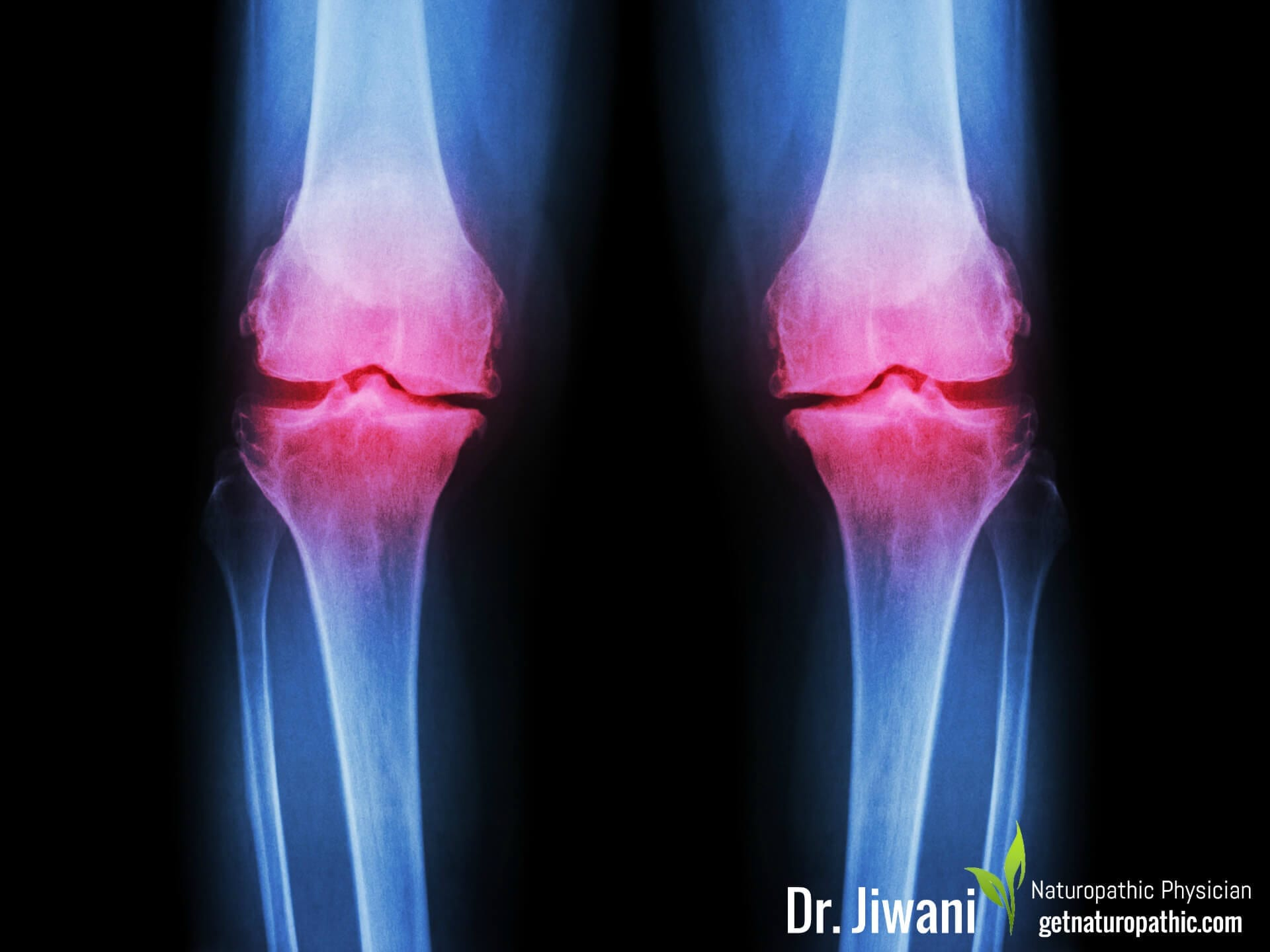 Prolozone Therapy: Natural Treatment for Joint Pain & Dysfunction | Dr. Jiwani's Naturopathic Nuggets Blog